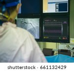 interventional cardiology. male ... | Shutterstock . vector #661132429