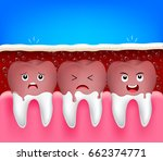 teeth problem of aerated soft... | Shutterstock .eps vector #662374771