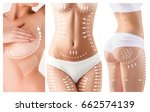 the cellulite removal plan.... | Shutterstock . vector #662574139