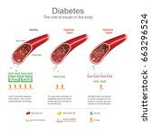 symptoms of high blood sugar... | Shutterstock .eps vector #663296524