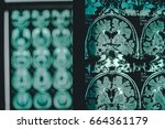 Small photo of alzheimer's disease on MRI 2