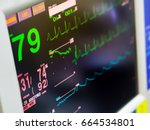 Stock photo medical monitor machine in operation room show normal vital sign of the patient 664534801