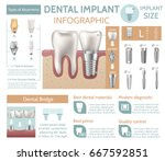 dental implant tooth care... | Shutterstock .eps vector #667592851