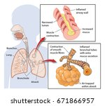 cross section through the lungs ... | Shutterstock .eps vector #671866957