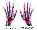 arthritis multiple joint of... | Shutterstock . vector #672310339