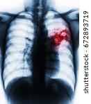 pulmonary tuberculosis . film... | Shutterstock . vector #672893719