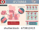 asthma symptoms  risk factors... | Shutterstock .eps vector #673812415