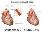 coronary artery bypass  medical ... | Shutterstock .eps vector #673828249