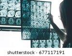 alzheimer's disease on mri | Shutterstock . vector #677117191