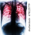 pulmonary tuberculosis . film... | Shutterstock . vector #678125779