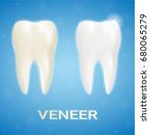 tooth veneer whitening dental... | Shutterstock .eps vector #680065279