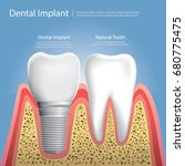 human teeth and dental implant... | Shutterstock .eps vector #680775475