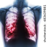 Small photo of Bronchiectasis . X-ray chest show multiple lung bleb and cyst due to chronic infection . Front view .