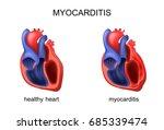 vector illustration of heart... | Shutterstock .eps vector #685339474