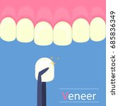 dental veneers on a human tooth.... | Shutterstock .eps vector #685836349