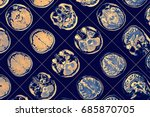 mr image of human brain | Shutterstock . vector #685870705