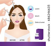 lifting and wrinkle injection... | Shutterstock .eps vector #686246635