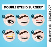 double eyelid surgery step... | Shutterstock .eps vector #686286007
