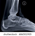 x ray of the heel spur | Shutterstock . vector #686501905