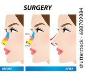 nose beauty surgery  ... | Shutterstock .eps vector #688709884