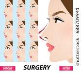 nose beauty surgery  ... | Shutterstock .eps vector #688709941