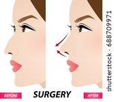 nose beauty surgery  ... | Shutterstock .eps vector #688709971
