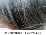louse egg on the hair causes... | Shutterstock . vector #690991639