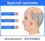 three types of basal cell... | Shutterstock .eps vector #691546801