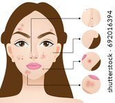types of acne   skin problems... | Shutterstock .eps vector #692016394