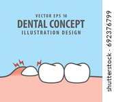impacted tooth inside under... | Shutterstock .eps vector #692376799