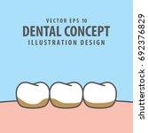 tartar or calculus teeth... | Shutterstock .eps vector #692376829