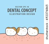 dirty teeth illustration vector ... | Shutterstock .eps vector #692376865