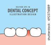 swollen inflammation gums with... | Shutterstock .eps vector #692376889