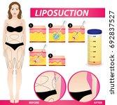 liposuction   woman fat surgery ...   Shutterstock .eps vector #692837527