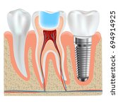 dental implant and real tooth... | Shutterstock . vector #694914925