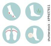 diabetic ulcer  cracked heel ...   Shutterstock .eps vector #699657811