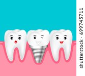 two healthy teeth and implant...   Shutterstock .eps vector #699745711