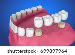 tooth supported fixed bridge.... | Shutterstock . vector #699897964