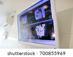 x ray of the jaw of the patient ... | Shutterstock . vector #700855969