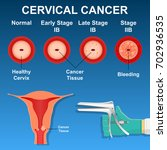 cervical cancer screening...   Shutterstock .eps vector #702936535