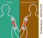 muscular dystrophy vector... | Shutterstock .eps vector #704731237