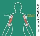 muscular dystrophy vector... | Shutterstock .eps vector #704736631