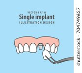 single implant upper... | Shutterstock .eps vector #704749627