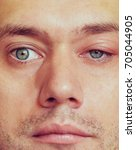 Small photo of sick men's eyes, an abscess, chiry, boil