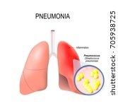 pneumonia. normal and... | Shutterstock .eps vector #705938725