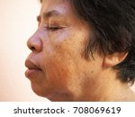asian old woman with skin... | Shutterstock . vector #708069619