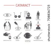 cataract. symptoms  treatment....   Shutterstock .eps vector #708836725