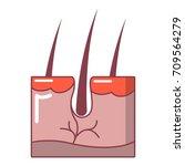 hair in skin icon. cartoon... | Shutterstock .eps vector #709564279