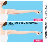arm lift and reduction surgery... | Shutterstock .eps vector #710848561