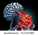 blood clot brain medical... | Shutterstock . vector #711737485